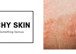 Can Itchy Skin Be a Sign Of Something Serious?
