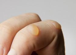 Bug Bites Blister Filled Clear Fluid (Updated)