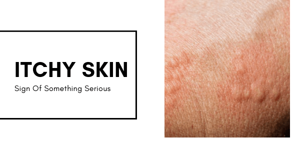 Itchy Skin